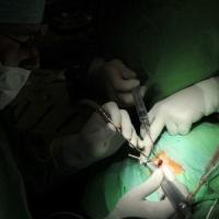 Európában egyedülálló hallásjavító-műtétet hajtottak végre Szegeden